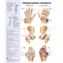 arthritis-and-joint-inflammation-reference-chart